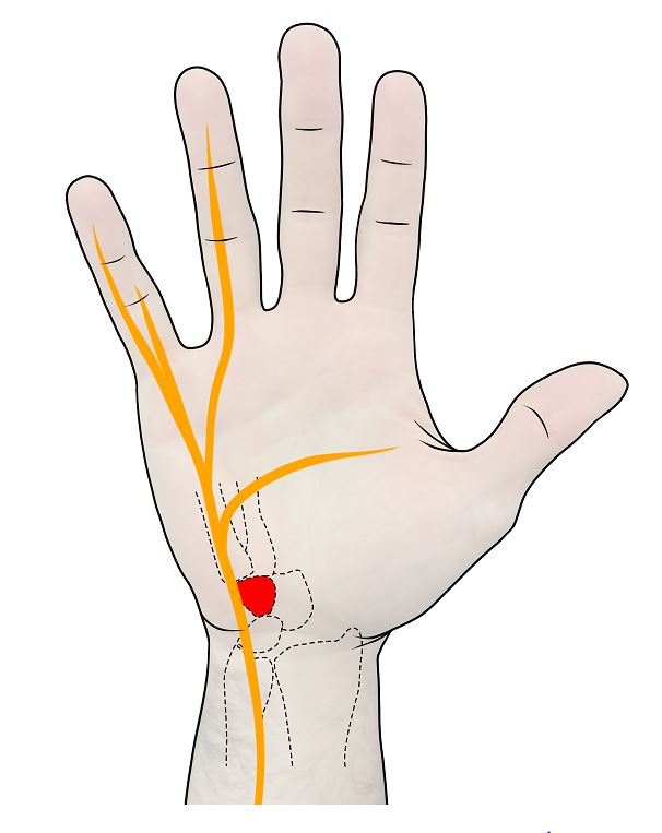 Hamate Bone and Ulnar Nerves - Commonly injured by traditional baseball bat knobs.
